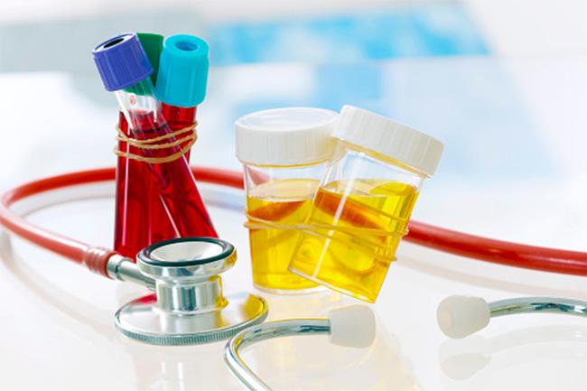 निम्न क्रिएटिनिन रक्त स्तर और रोग