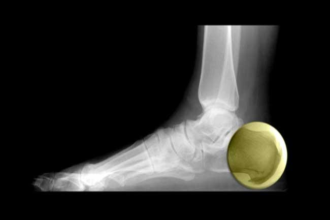 बोन स्पर्स (bone spurs) के घरेलू उपचार