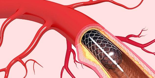 blood-cellblockage