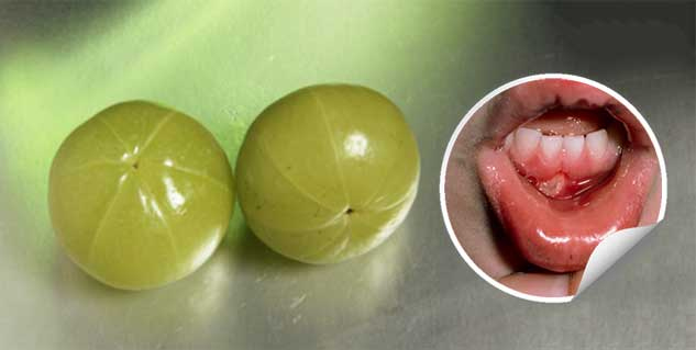 amla for mouth ulcer in hindi