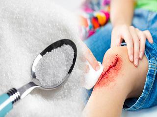 चीनी से करें अपनी चोट और घाव का इलाज, जानिए कैसे