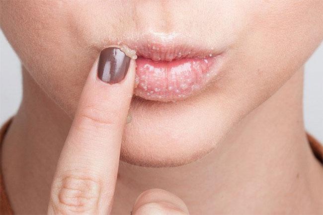 होंठों को मुलायम बनायें