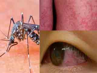 जीका वायरस से बचने में मददगार हैं ये 4 उपाय