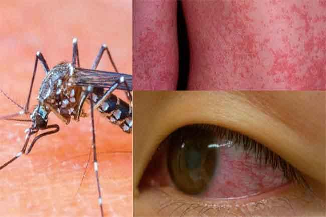 जीका वायरस से बचने के उपाय
