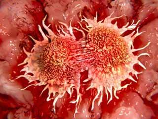 अब जेनेटिकली मॉडीफाइड ब्लड से संभव है कैंसर का उपचार