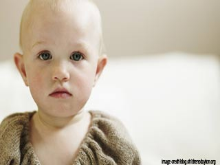 बच्चों में पाचन सम्बंधी रोगो के लक्षण