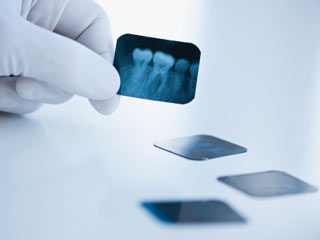 How often should you get your teeth X-rayed?