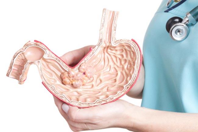पेट का कैंसर