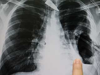 A new therapy can quickly heal respiratory infections