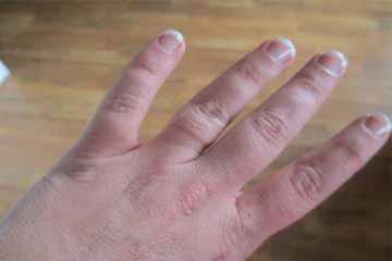 अंगूठी के निशान से छुटकारा पाने के टिप्स
