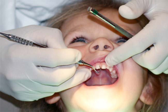 दांतों की भराई