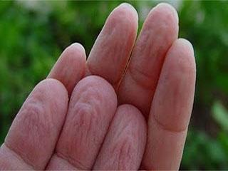 पानी में अधिक देर तक डालने से क्यों सिकुड़ जाती हैं उंगलियां