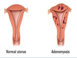 जानें क्या हैं एंडोमेट्रियोसिस के लक्षण, कारण और उपचार