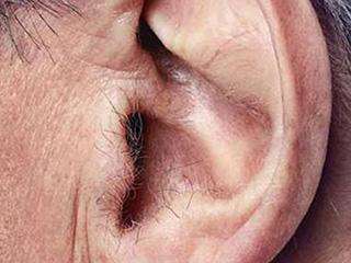 हार्ट अटैक की तरफ इशारा करते हैं कान के बाल