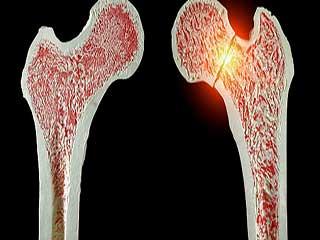 जानें भंगुर हड्डियों की समस्या को लेकर सचेत होना क्यों है जरूरी