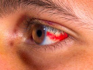 जानें क्या हैं सबकंजंक्टिवल हेमोरेज के कारण, लक्षण और इसके बचाव के उपाय