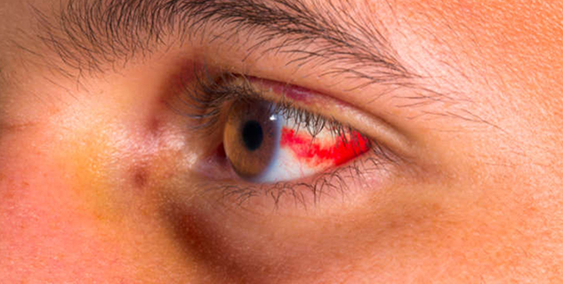 subconjunctival hemorrhages in hindi