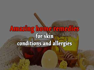 Amazing home remedies for skin conditions and allergies