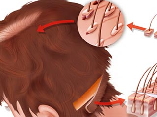 Follicular hair extraction technique for hair transplantation