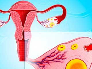 जानें क्या हैं फैलोपियन ट्यूब में कैंसर के प्रमुख लक्षण