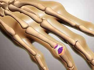 कर रहे हैं एक ही तरह का काम तो बढ़ सकता है रयूमेटॉयड आर्थराइटिस - शोध