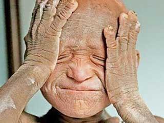 इक्थीओसिस - जानें क्यों पत्थर की मूर्ति बनने लगा 11 साल का ये बच्चा