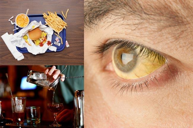 पीलिया में क्या खायें और क्या नहीं