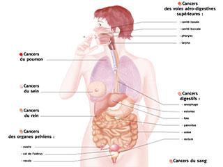गले के कैंसर का पूर्वानुमान कैसे करें