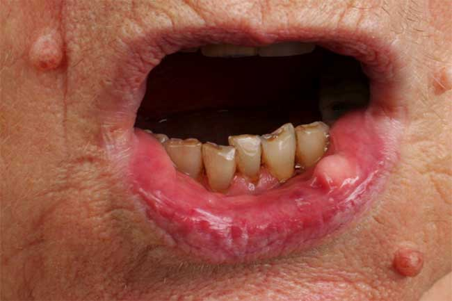 मुंह का कैंसर
