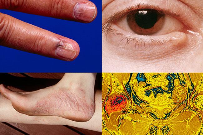 अप्रत्याशित हिस्सों में भी होता है त्वचा का कैंसर