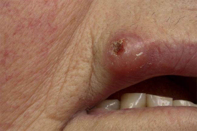 मुंह में कैंसर