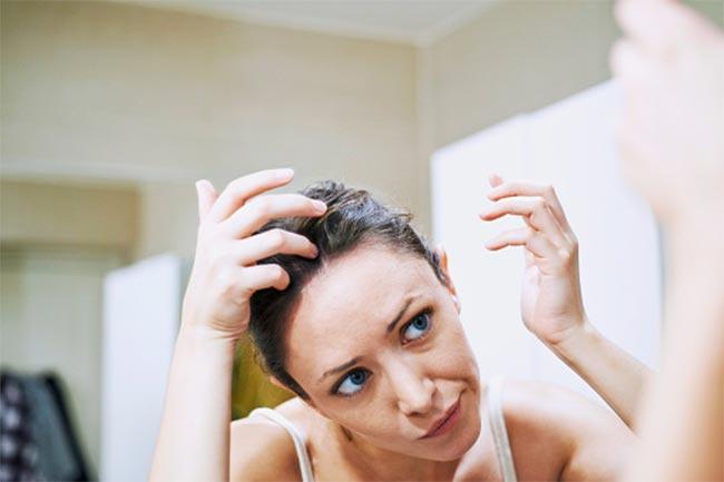 चिपचिपे बालों की समस्या