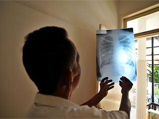 Half way success in tuberculosis eradication across the world
