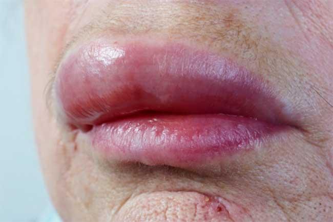 होंठों पर सूजन