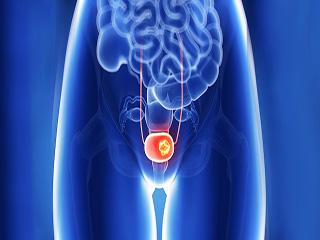 जानें कैसे टाइप 2 डायबिटीज की दवा से बढ़ता है ब्लैडर कैंसर का खतरा