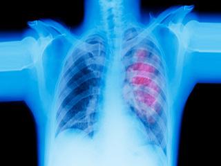 लंग कैंसर से हो सकती है सांस संबंधी समस्या