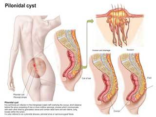 पाइलोनाइडल सिस्ट के लिए 5 प्रभावी घरेलू उपचार