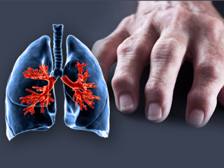 Effects of rheumatoid arthritis on lungs you were not aware of