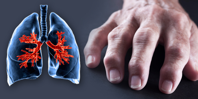 arthritis and lung