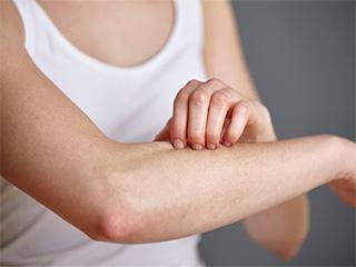 कपड़ों की एलर्जी से बचने के लिए आजमायें ये 5 तरीके