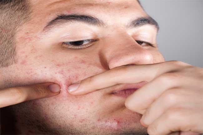 गांठ वाले पिंपल्स और उनका उपचार