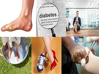 डायबिटीज में कॉर्न और कैलस की समस्या और उपचार