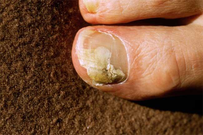 मिथ: दाद केवल त्वचा को प्रभावित करता है