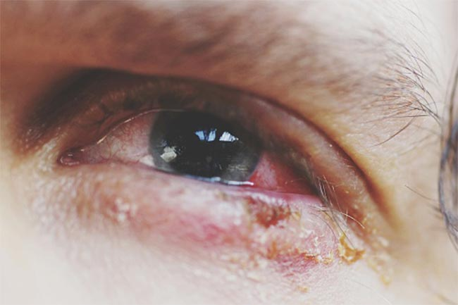 आंखें लाल और थकी होना