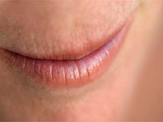 फटे होंठ छीन न लें आपकी मुस्कान