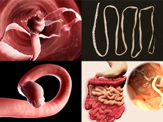 बच्चे के पेट में कीड़ों के प्रकार और उनका उपचार