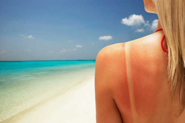 Help you get rid of sunburns