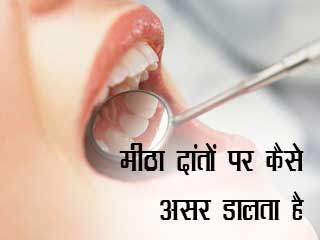 मीठा दांतों पर कैसे असर डालता है