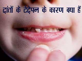 दांतों के टेढ़ेपन के कारण क्या हैं