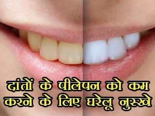 दांतों के पीलेपन को कम करने के लिए घरेलू नुस्खे